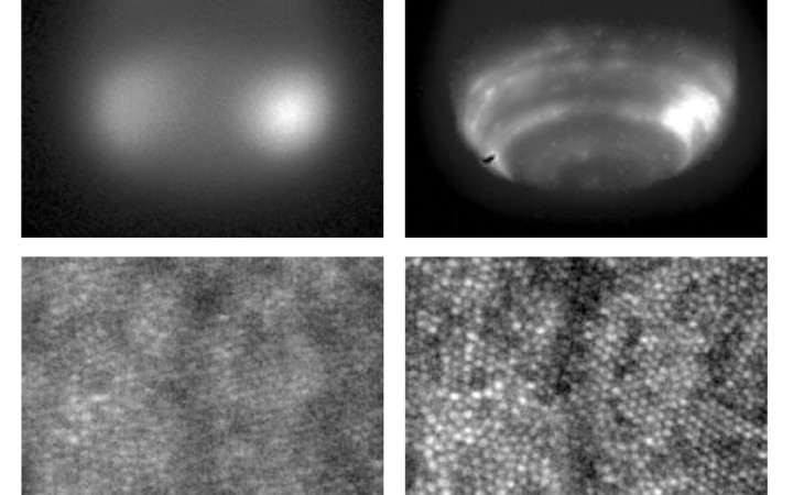 Images of Neptune (top) and cone photoreceptors in a living human retina (bottom) with and without the use of adaptive optics (left and right, respectively). The bright spots in the retinal image are individual cone cells, and the vertical line is the shadow of a blood vessel. The diameter of each cone is about five microns. (Neptune: Claire Max; retinas: Austin Roorda)