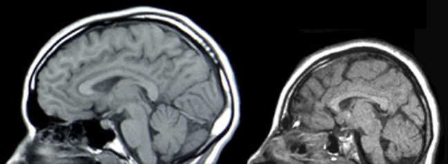 Microcephaly studies: brain scans of a normal individual (left) and a patient with microcephaly caused by an ASPM mutation (right). Source: WikiCommons (doi:10.1371/journal.pbio.0020134).