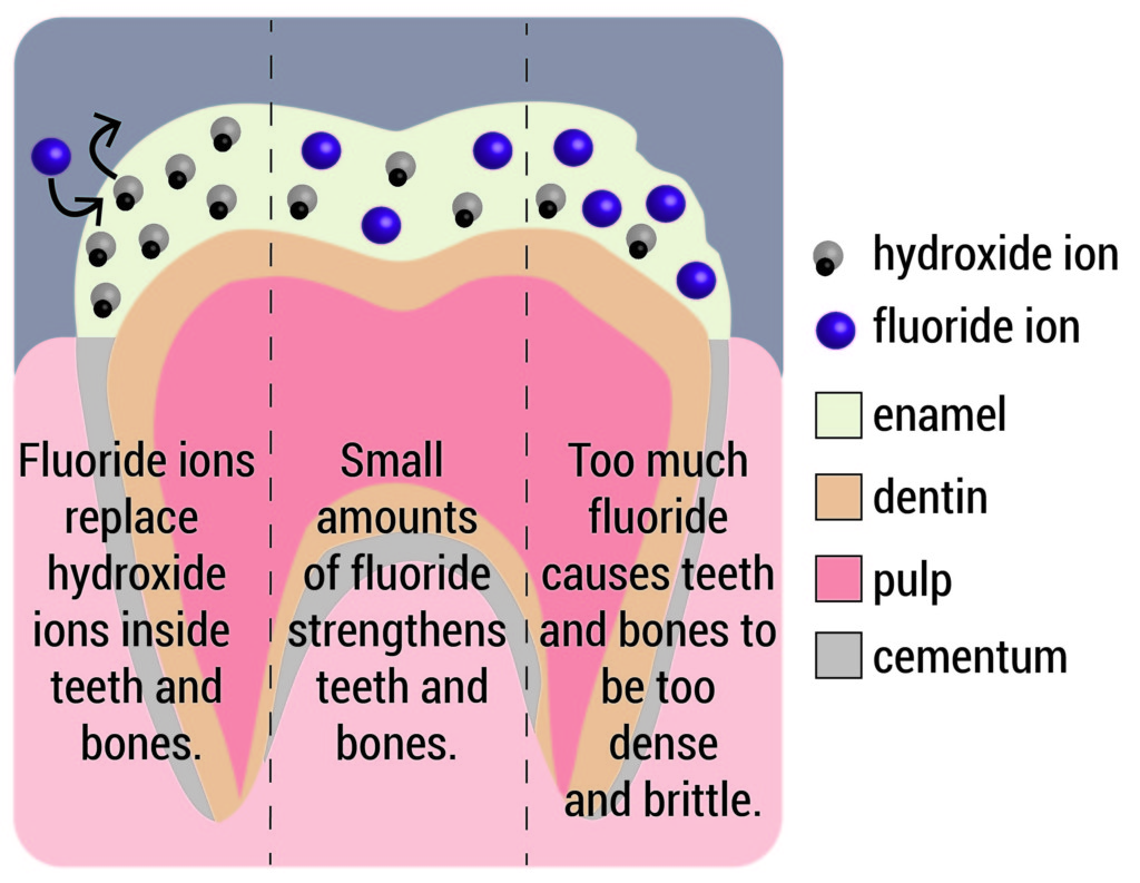 Higher Levels Of Urinary Fluoride >> Fluoride In Drinking Water Friend And Foe The Berkeley Science Review